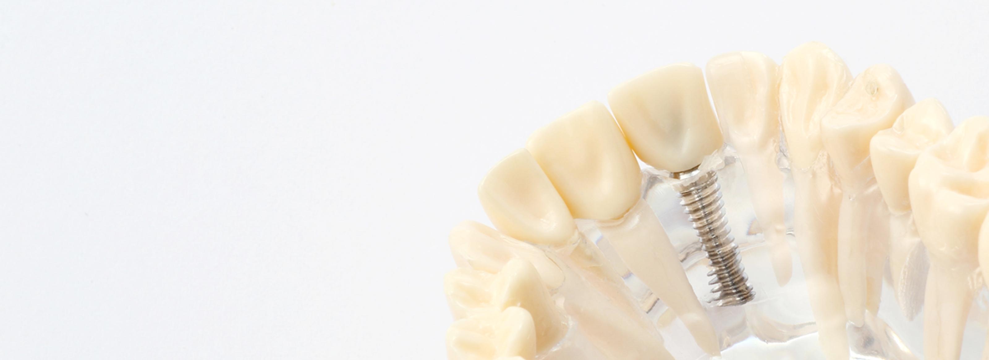 失った歯… 周りの歯を守るために インプラント にしませんか?
