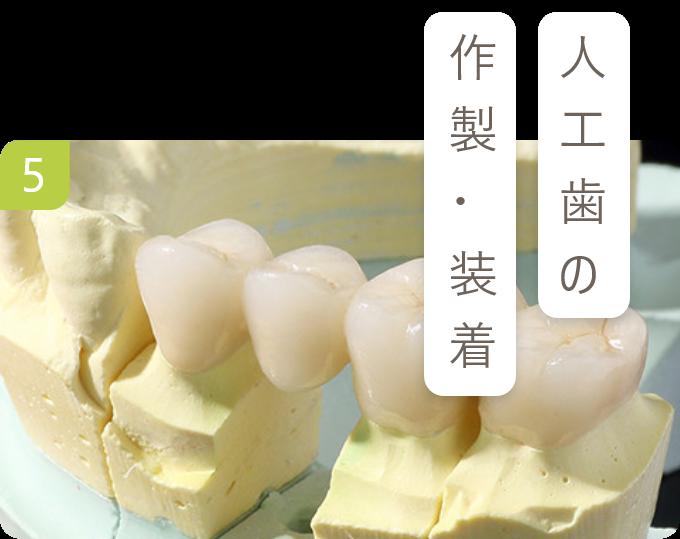 人工歯の 作製・装着