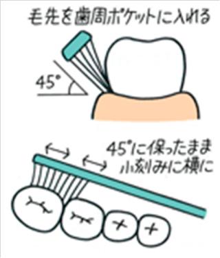 ブラッシング法について(1)
